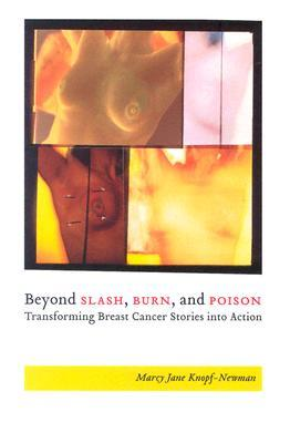 Beyond Slash, Burn, and Poison by Marcy Jane Knopf-Newman